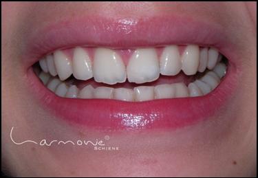Korrektur Zahnfehlstellung