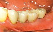 Implantat mit Zahnersatz