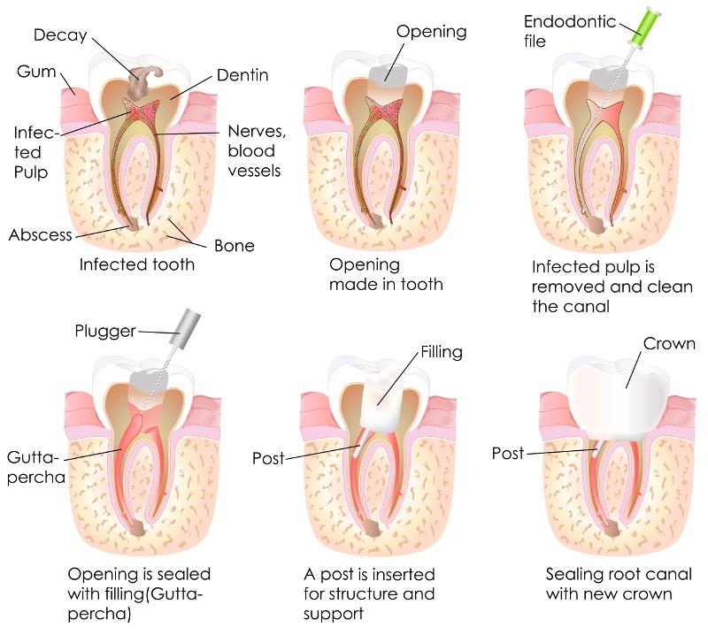 Wurzelkanalbehandlung kurz Wurzelbehandlung